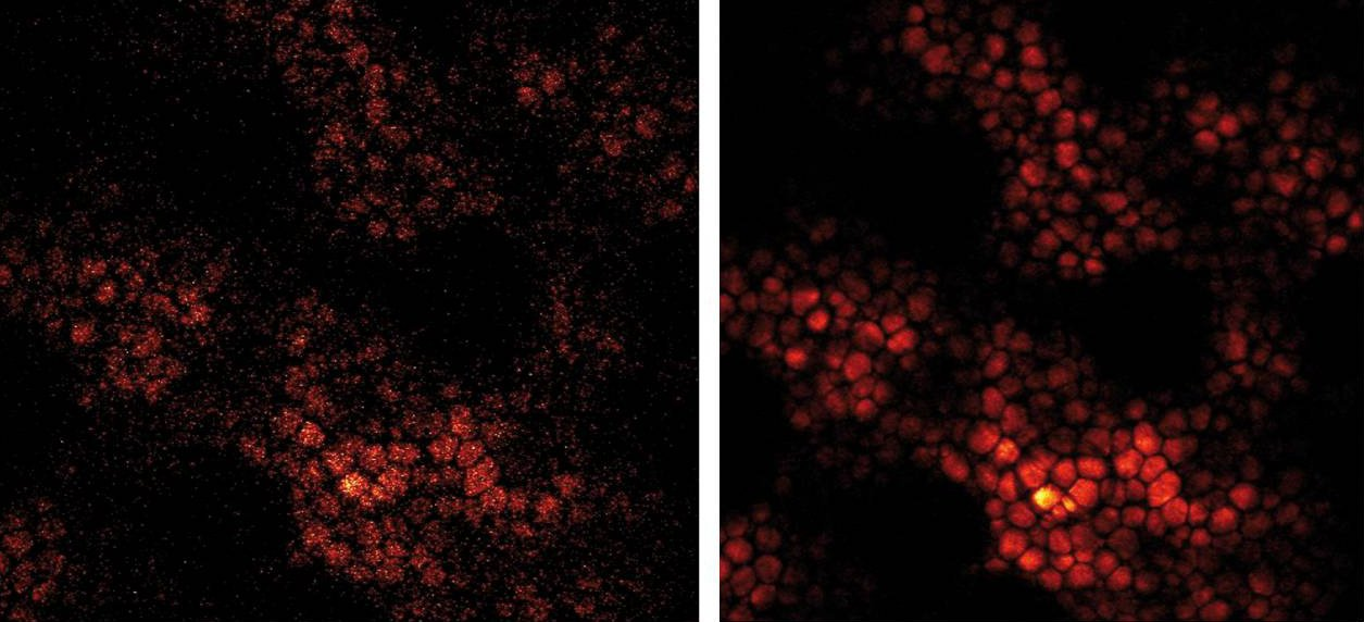 Subcutanous fat layer of mouse skin, imaged with Leica TCS SP5 CARS. Left: resonant scanning at 30 frames per second, corresponding to 120ns per pixel still offers a good illustration of the structures. For comparison on the right: image taken with 30 ave