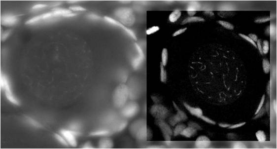 Comparison of confocal confocal and non-confocal imaging. Feulgen-stained mouse-trophoblast image with an inserted region of interest. In the region of interest, the image is recorded with a true confocal scanner system (point-illumination and point-detec